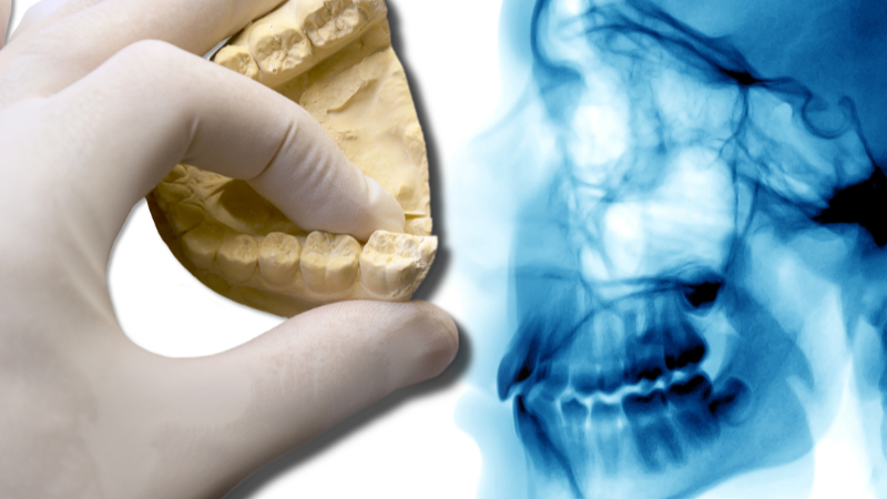 Digitaler Zahnabdruck Ad Dento Meerbusch