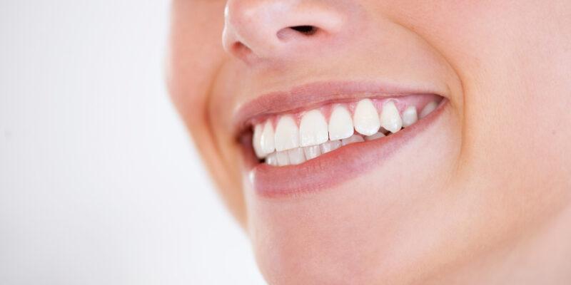 Gummy Smile Meerbusch Ad Dento