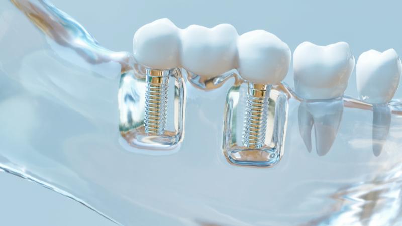 Oralchirurgie Meerbusch Ad Dento